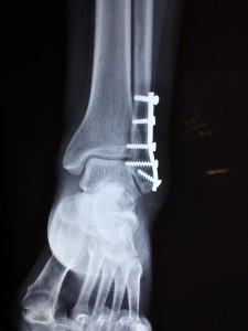 an injured ankle